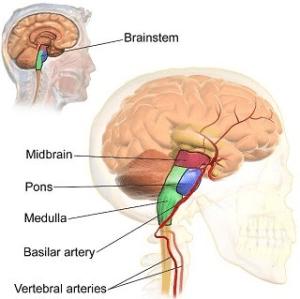 What Causes a Brain Stem Stroke? | Study