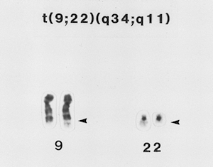 Karyotyping Tests: Definition, Procedure & Examples