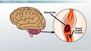Cerebellar Stroke: Symptoms & Treatment  Video & Lesson Transcript | Study