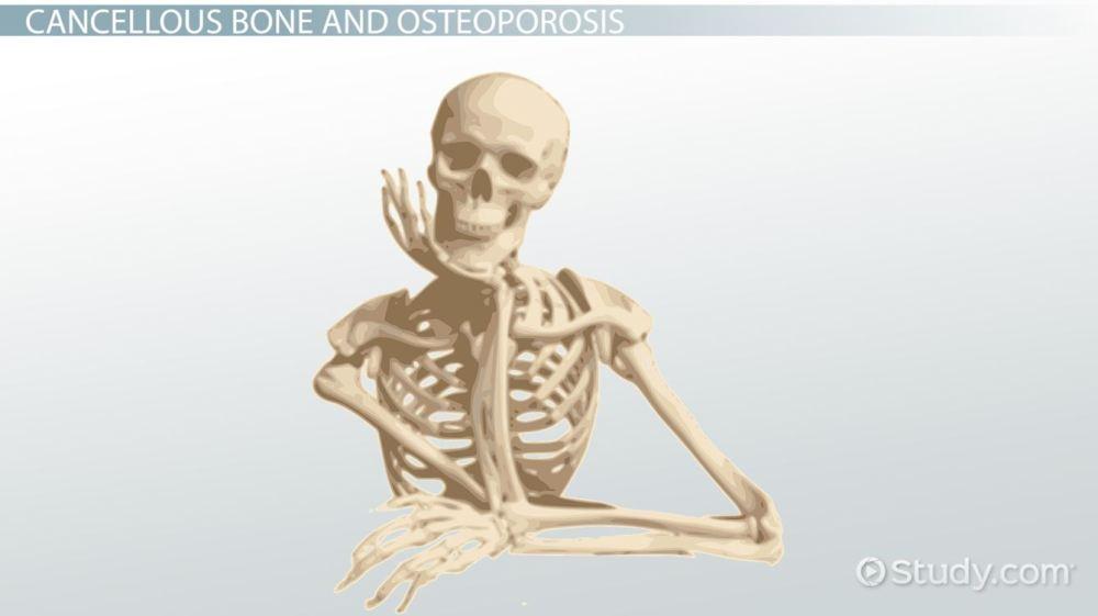 medium resolution of cancellous bone definition structure function video lesson transcript study com