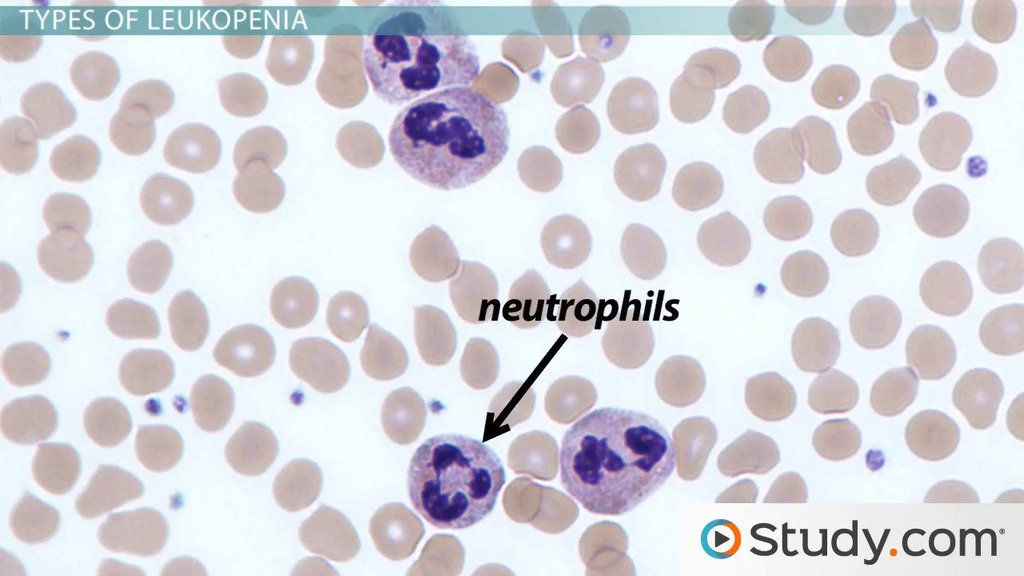 What Is Leukopenia? Causes & Types Video & Lesson