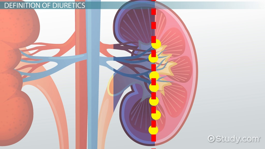 What Are Diuretics? Definition Types Side Effects