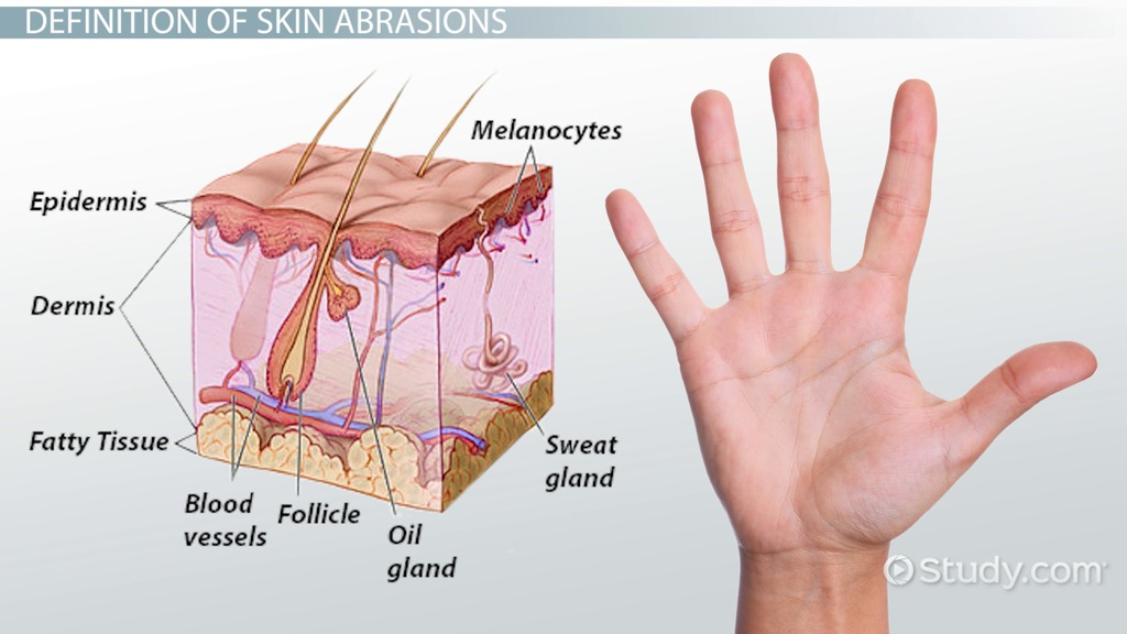 What Is Skin Abrasion Definition Amp Treatment Video