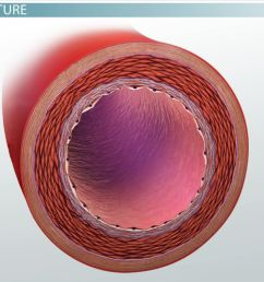 What are Arteries? - Function \u0026 Definition - Biology Class (Video)    Study.com [ 720 x 1280 Pixel ]