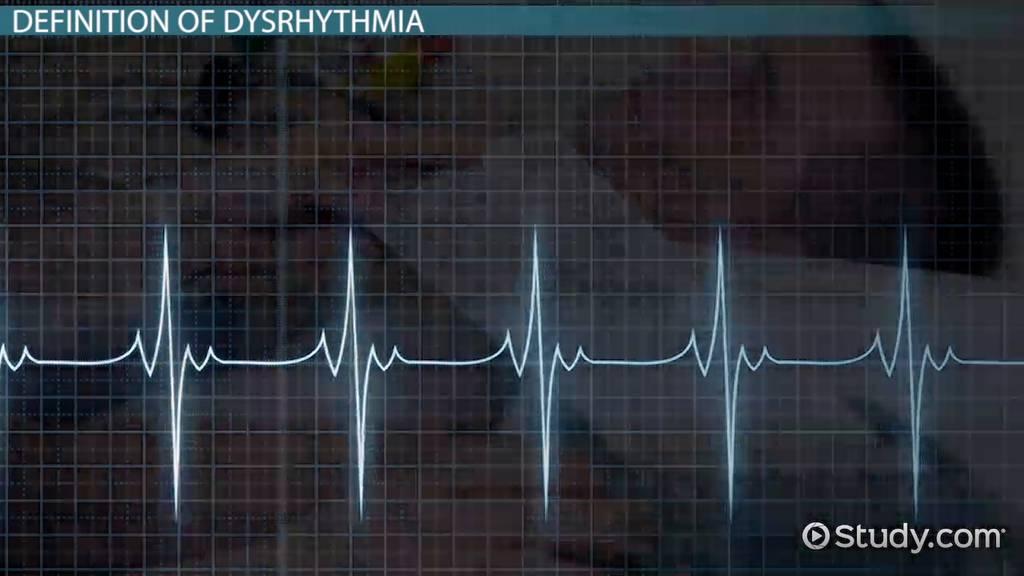What Is Dysrhythmia? - Definition Symptoms & Treatment ...