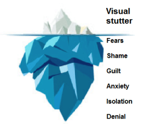 The Sheehan iceberg model for suttering