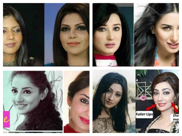 Which Pakistani Actresses Have Successful Plastic Surgeries 001