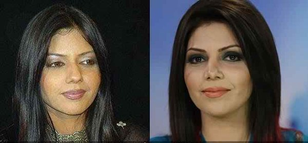 Which Pakistani Actresses Have Successful Plastic Surgeries 005