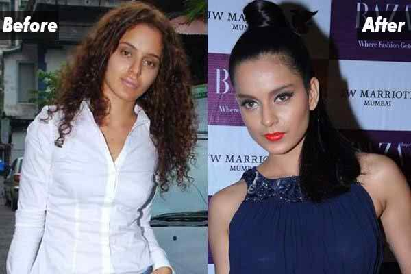 Which Bollywood Celebrities Opted Cosmetic Surgery009