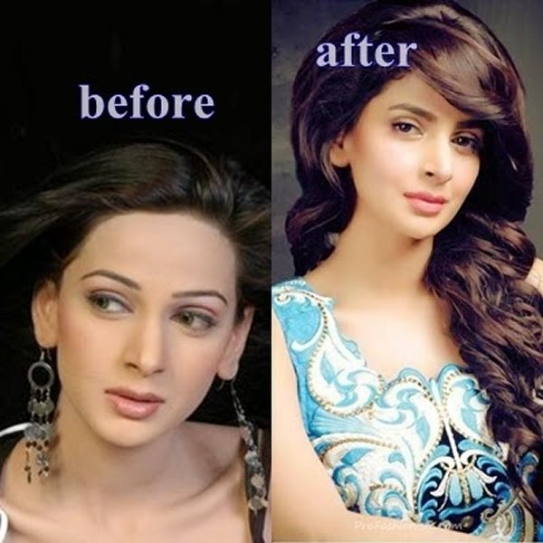 Before And After Pictures Of Pakistani Celebrities007