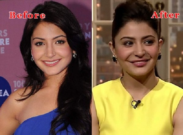 Which Bollywood Actresses Look Horrible After Their Plastic Surgery001