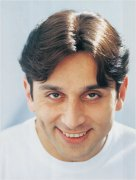actor faisal rehman hair transplant