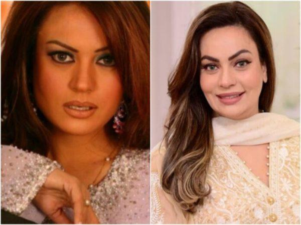 Famous Pakistani Drama Actresses Who Got Lip Fillers