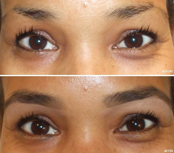 The Best Inexpensive Way To Grow Thicker Eyebrows