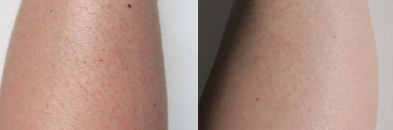 before and after Nair Argan Oil