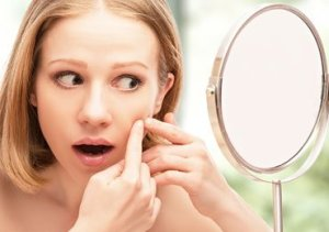 Home-remedies-acne-and-Pimples