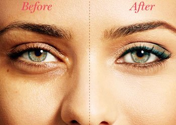 Cover Up Your Dark Circles