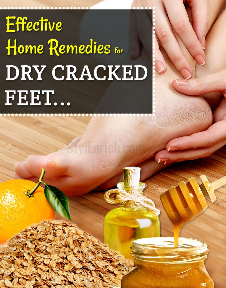 Natural-home-remedies-for-dry-cracked-feet