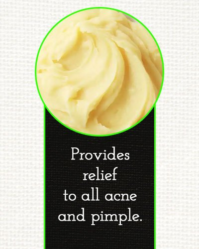 Homemade Masks To Get Rid of Acne