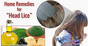 How To Get Rid of Head Lice!
