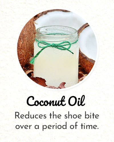 Coconut Oil for Shoe Bite