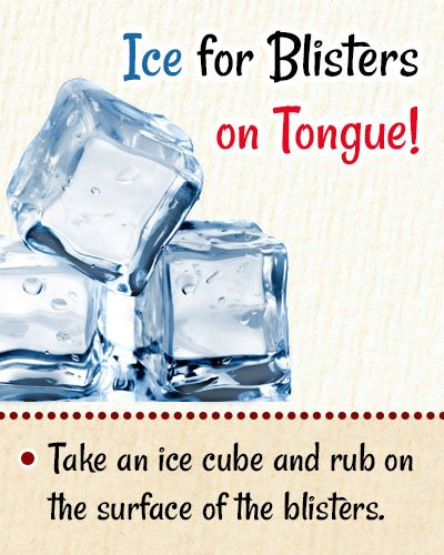 Ice For Blisters On Tongue