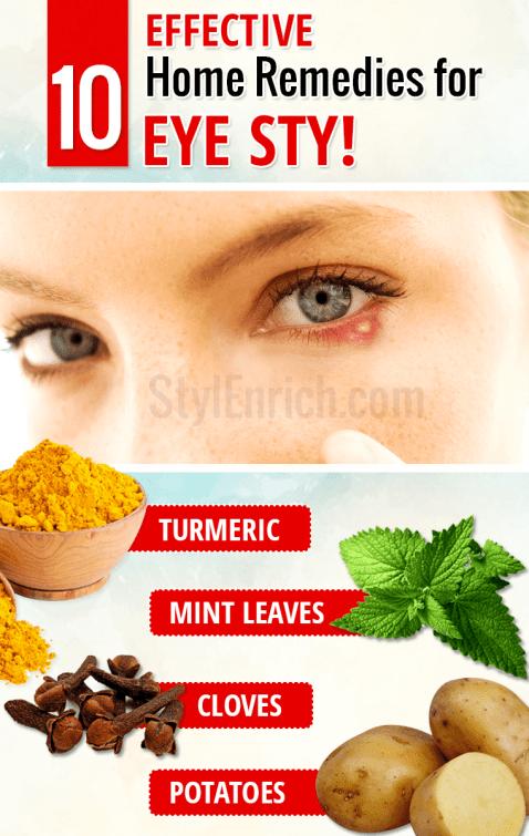 Home Remedies for Eye Stye