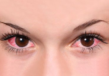 Home Remedies for Eye Inflammation
