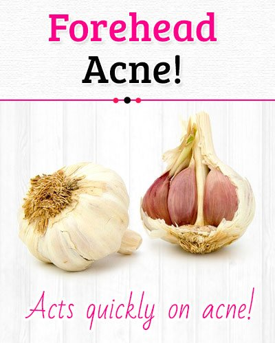 Garlic to Get Rid of Forehead Acne