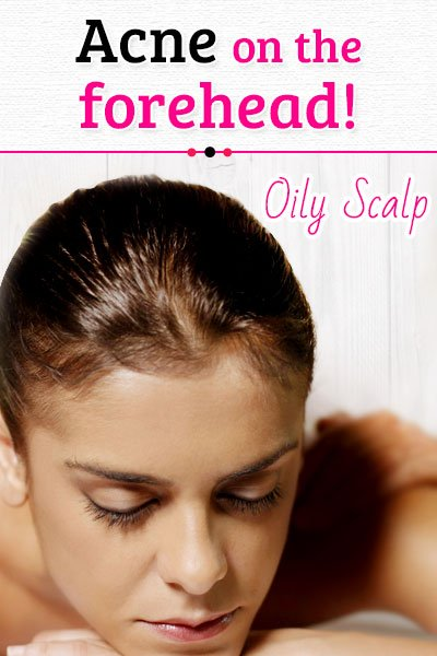 Oily Scalp Causes of Forehead Acne