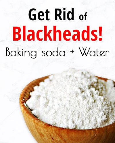 Water and Baking Soda for Blackheads On Chin
