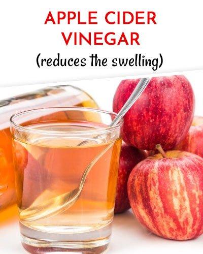 Apple Cider Vinegar to Get Rid of Varicose Veins