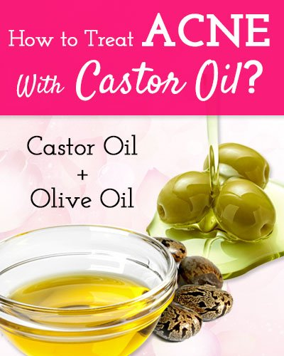 Castor oil and Olive Oil For Acne