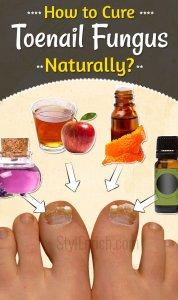 How to Cure Toenail Fungus Naturally?