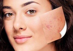 Best acne treatment at home