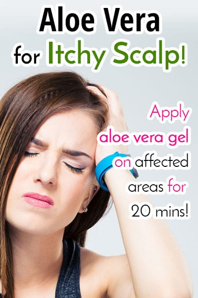 Aloe Vera for Irritable and Itchy Scalp