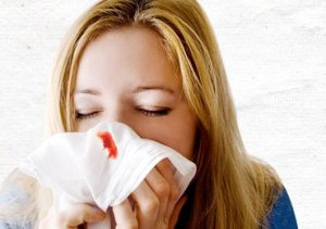 Home Remedies for Nosebleeds