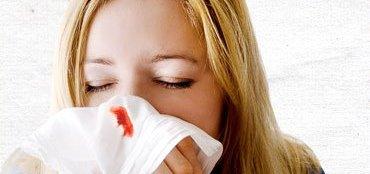 Home Remedies for Nosebleeds