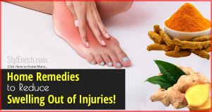 Home Remedies For Swelling Due To Injury