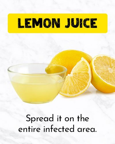 Lemon Juice To Get Rid Of Ingrown Hair