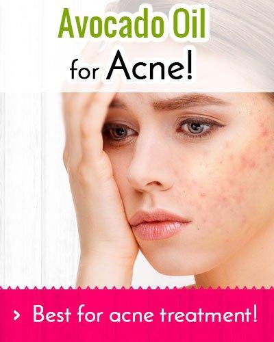 Avocado oil for face acne
