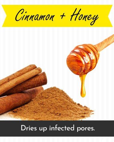 Honey & Cinnamon Face Mask For Acne