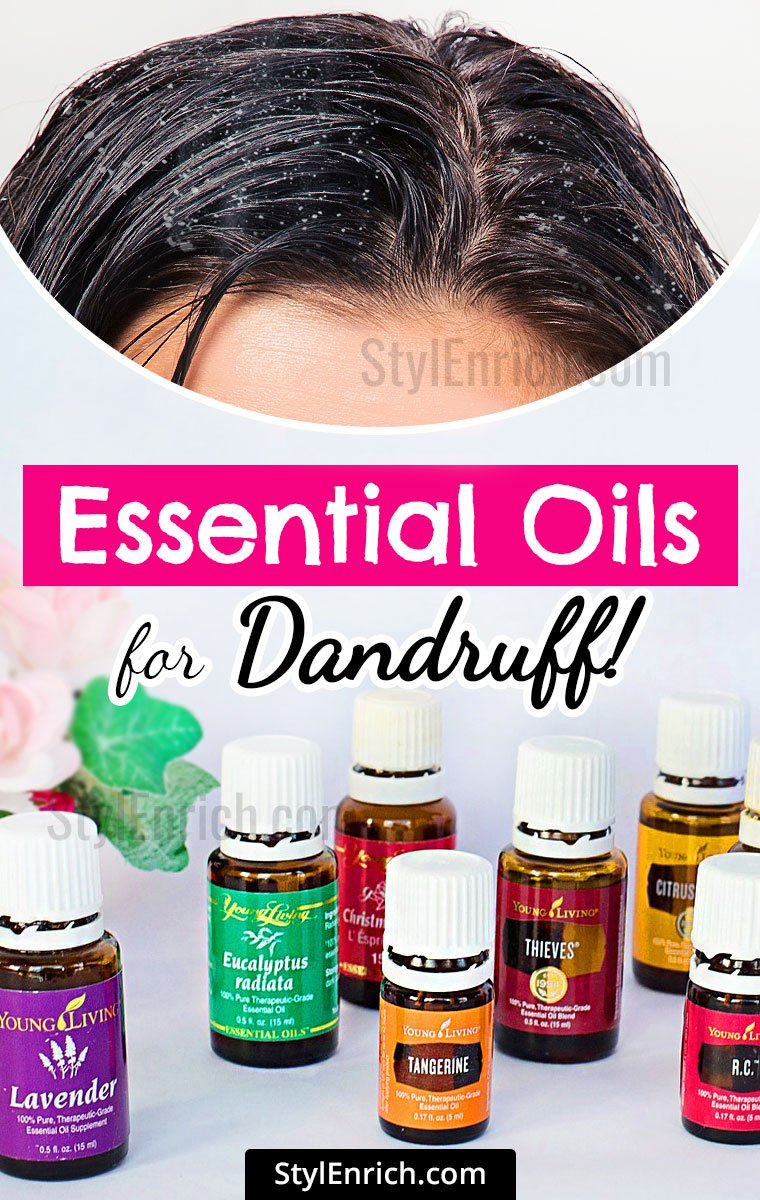 Best Essential Oils for Dandruff!