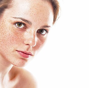 Hyperpigmentation Causes and Treatment