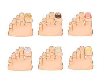 Toenail fungus infections