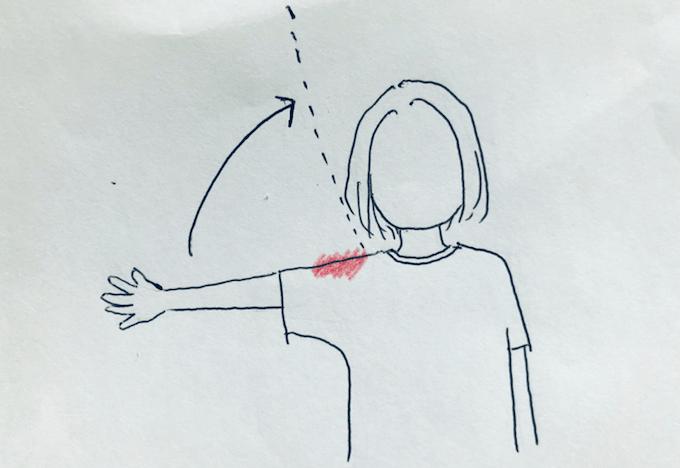 untitled2020 shoulder pain 1