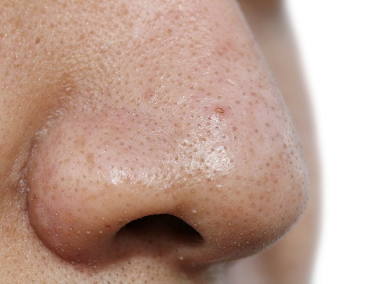 Image result for blackheads