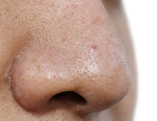 Image result for nose blackhead