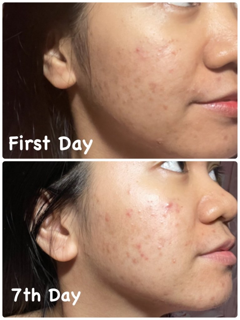 lactezin review - how to treat and prevent pimples
