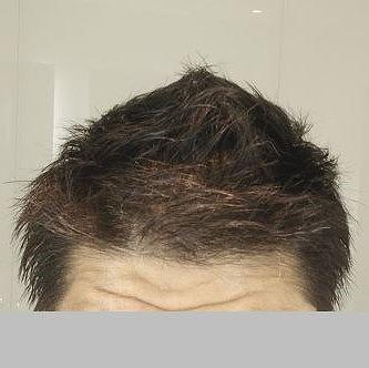 200817_おすすめ育毛剤 ミノキシジル錠剤_正面から